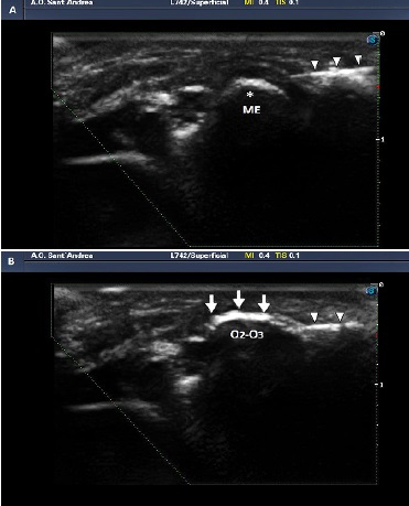 Figure 6: Medial epicondylitis ultrasound-guided infiltration. 