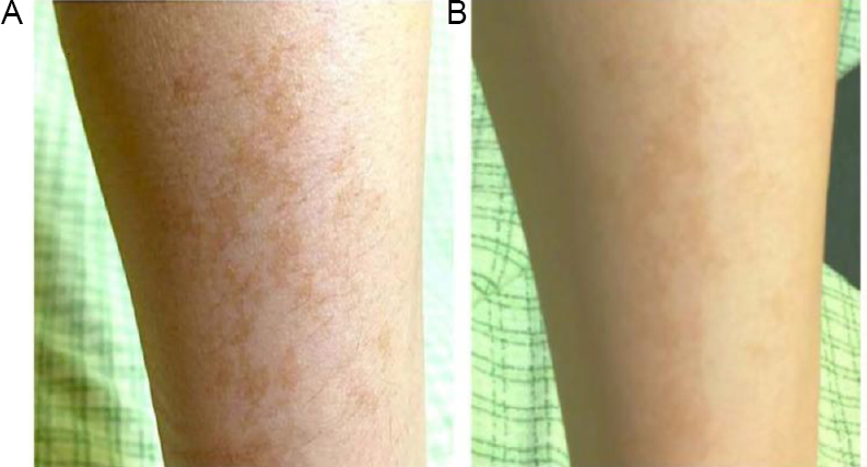 Figure 2: The blotch-decreasing effect on the skin by hydrogen-rich water bath.